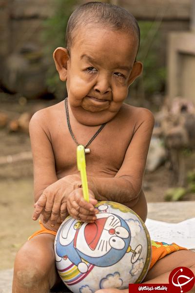 بیماری عجیب یک کودک/پسر چهار سالهای که مثل یک پیرمرد هشتاد ساله است +تصاویر