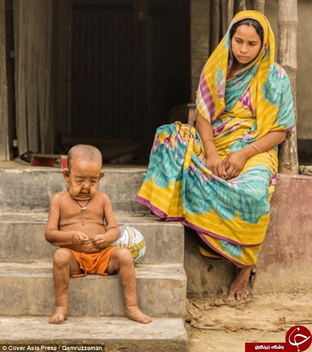کودکی که در بچگی پیر شد + تصاویر
