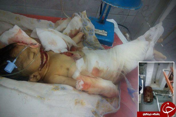 نوزاد نارس توسط موش ها زنده زنده خورده شد+عکس