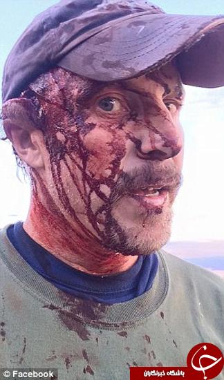 زخمهایی که خرس مادر روی بدن چاقو ساز گذاشت +تصاویر