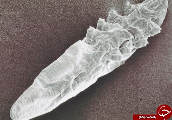 کرمهای زندهای که روی پوست انسان زندگی میکنند+ تصاویر