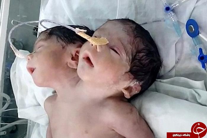 نوزاد دوسر شگفت انگیز هندی فقط 32 ساعت زنده ماند