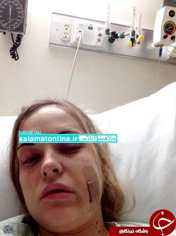 این زن «بیماری خودکشی» دارد ! +عکس