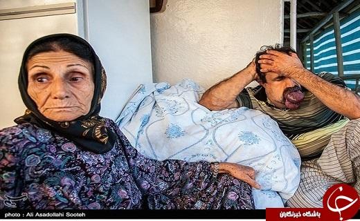 تصاویری از بیماری گشادی رگهای خونی اسماعیل