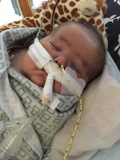 اقدام جالب والدین نوزاد 4 ماهه در هنگام عمل پیوند فرزندشان+تصاویر(16+)