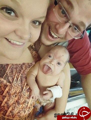 تصاویری از نوزاد زبان دراز که عاقبت خندید