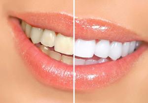 با زردی دندانم چه کنم؟