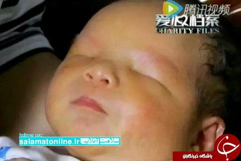تولد نوزاد بدون چشم +عکس