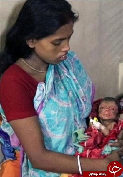 تولد نوزاد 80 ساله در بنگلادش +تصاویر