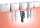 باشگاه خبرنگاران -توليد نوعی خاص از  ايمپلنت های دندانی در دانشگاه تربیت مدرس