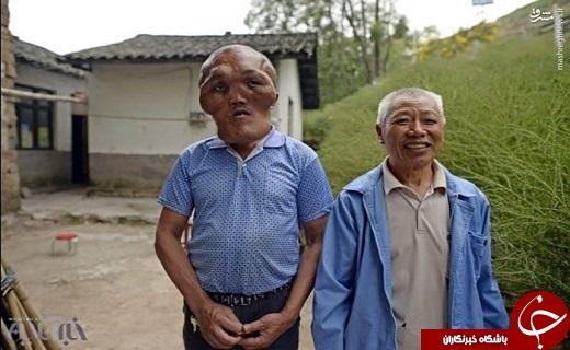 عکس/ بیماری عجیب و غریب مرد چینی