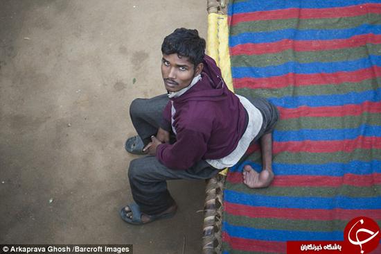 مرد هندی که 4 پا دارد +تصاویر