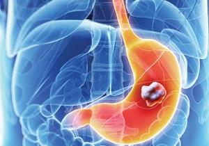 کاهش وزن شديد نشانه سرطان معده