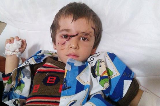 گرگ 10 کودک را در یک روستای تبریز زخمی کرد