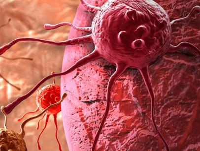 نشانه هاي سرطان پروستات