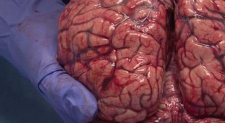 نمای متفاوت و جالب از مغز انسان + فیلم
