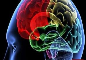سن پایین سکته مغزی در کشور / هنگام بروز سکته مغزی چه باید کرد؟