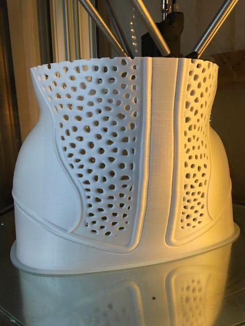 چاپ محافظ شکل دهنده ستون فقرات توسط پرینتر سه بعدی برای اصلاح انحراف کمر+تصاویر