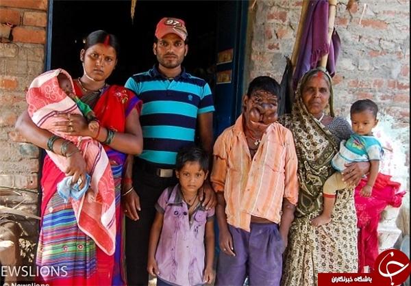 نوجوان هندی را محاصره کرده است+تصاویر