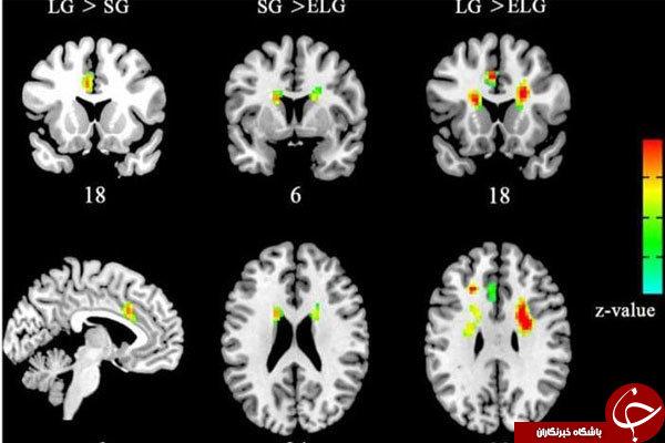 تاثير مشابه عشق و مذهب بر مغز