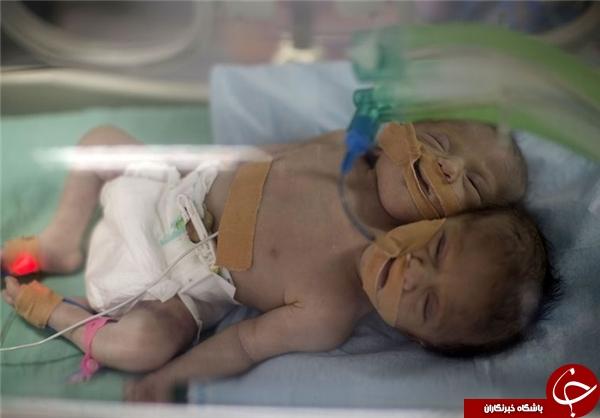 تولد نوزاد دو سر +تصاویر
