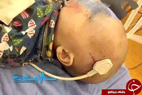 خارج کردن سهشاخه کابل برق از سر یک کودک ۲ ساله +عکس
