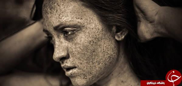 عجیبترین و باورنکردنیترین رنگ پوستها در جهان+تصاویر