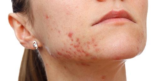 درمان فوری و سریع آکنه و جوش صورت +داروی گیاهی و طب سنتی