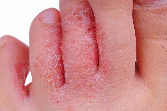 قارچ های پوستی این علائم را دارند!