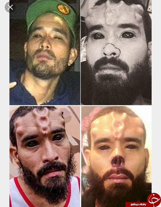چرا این مرد به این چهره وحشتناک تبدیل شد + تصاویر