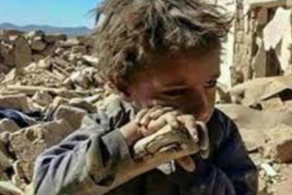 یونیسف: در هر 10 دقیقه دستکم یک کودک یمنی بر اثر بیماری میمیرد