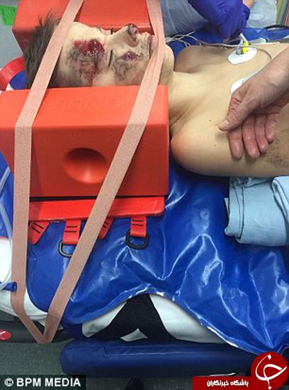 تصاویری تکان دهنده از پسر تصادف کرده