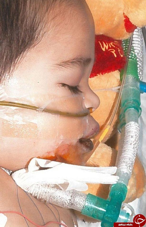 محلول وایتکس کودک را برای همیشه لال کرد + تصاویر