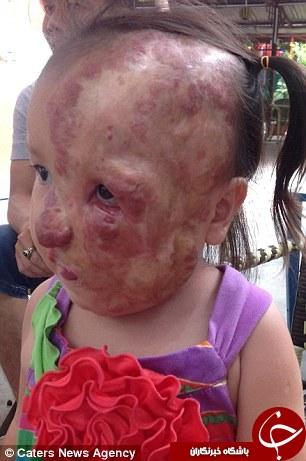 دختری که تنها نیمی از صورتش سالم است + تصاویر