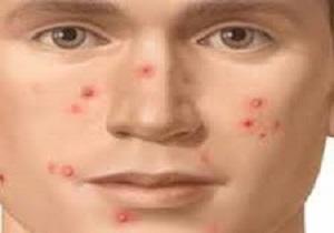 درمان جوش مزمن صورت