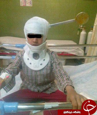 فرورفتن کفگیر در سر کودک شیرازی به همراه عکس