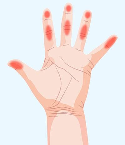 دست ها چه چیزهایی درباره سلامت ما می گویند