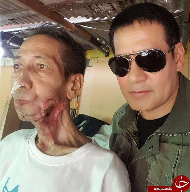 سرطان نادر و عجیب مرد تایلندی + تصاویر/ 18+