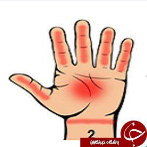 هفت نشانه جدی در بدن را با نگاه کردن به کف دستتان تشخصی دهید/کف دست بینی، این بار برای تشخیص و علاج بیماری