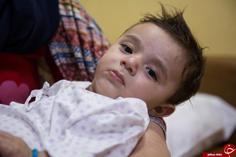 نوزادی با هشت دست و پا زیر تیغ جراحان رفت+تصاویر 18+