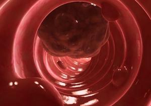 روشی نوین برای جلوگیری از رشد سرطان روده بزرگ