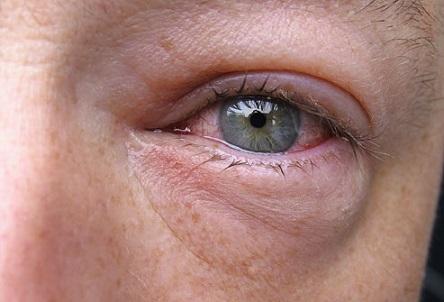 ترفندهایی طبیعی برای خلاص شدن از پف اطراف چشم