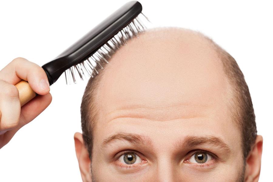 خوراکیهای فوق العاده برای درمان ریزش موی سر