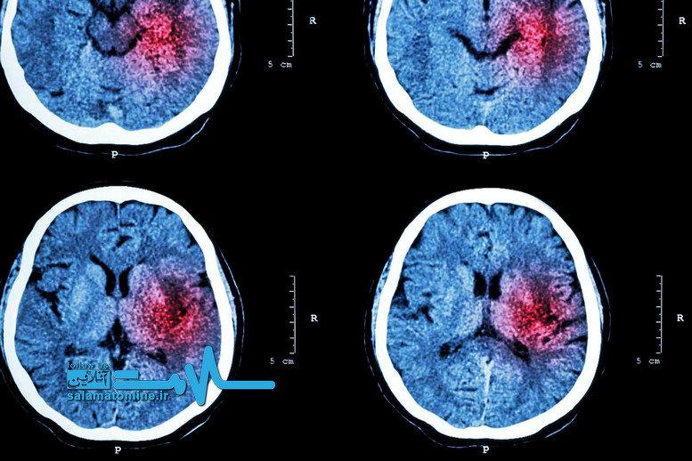 علائم و نشانههای خونریزی مغزی را بشناسید