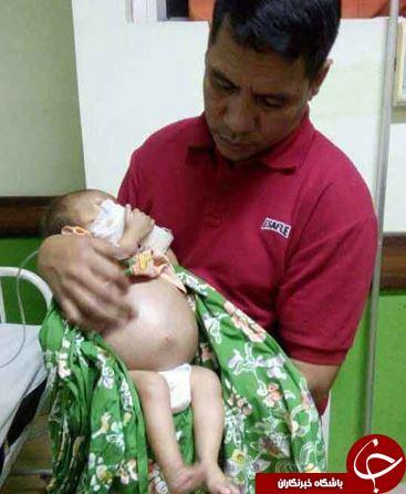 عجیب ترین علت تورم شکم یک نوزاد در جهان + تصاویر