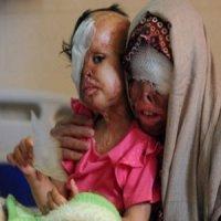 قصاص سرانجام پدر بیرحمی که صورت همسر و دخترانش را با اسید سوزاند+عکس