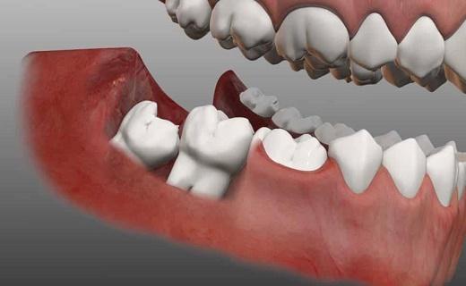 راههای جلوگیری از سنگ کلیه/نکاتی پیرامون دندان عقل/پیشگیری ازهپاتیت A با بهداشت فردی/ برای فرار از دیابت این مواد غذایی را مصرف کنید