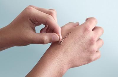 توصیههایی برای بهبود سریعتر زخمها