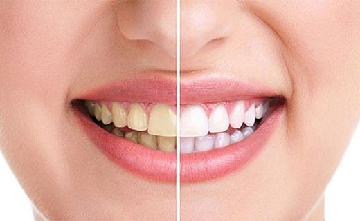 سلامت جنین با محصولات پاستوریزه/ برای سلامتی پوست خود صابون مناسب انتخاب کنید/ اعتیاد در جراحی های پلاستیک/ دندان های سالم همیشه سفید نیستند