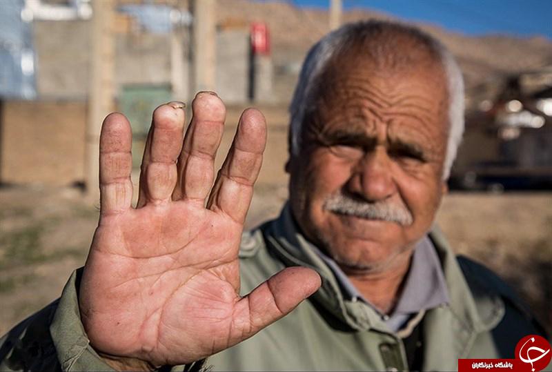مردمی عجیب با انگشتان بریده در یک روستا! +تصاویر